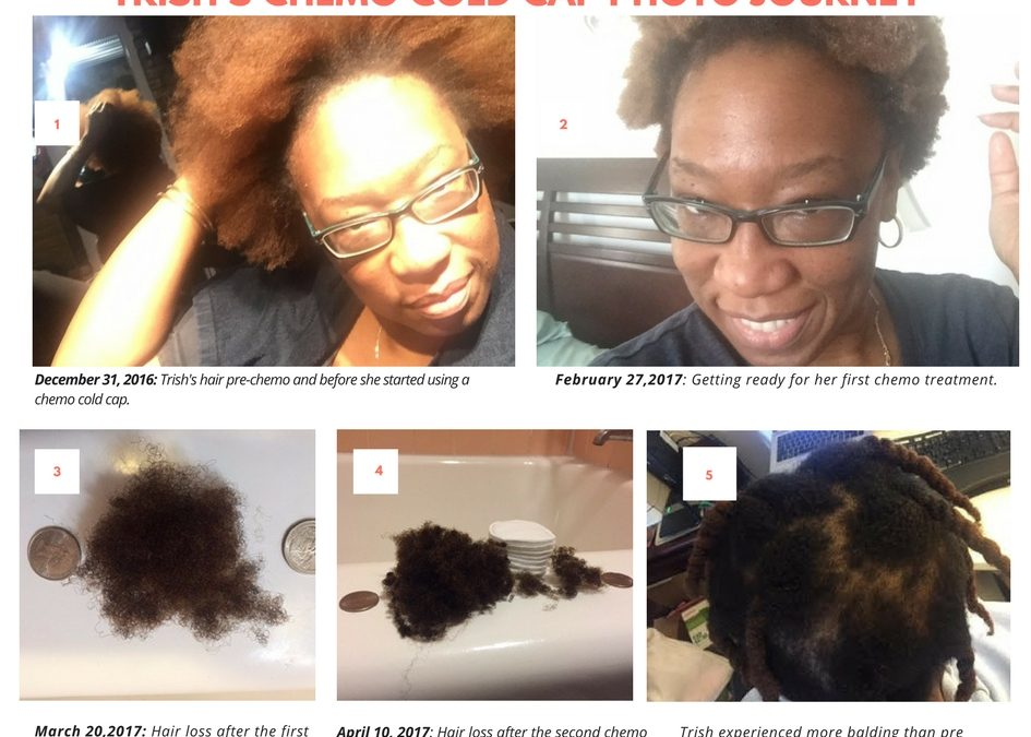 Do Chemo Cold Caps Really Work on Natural Hair? Trish's Chemo Hair Loss Journey